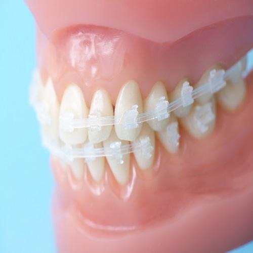 歯並びを綺麗にする治療