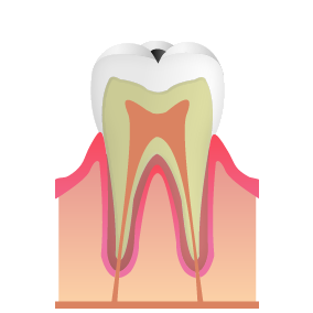 虫歯の初期段階(C1まで)