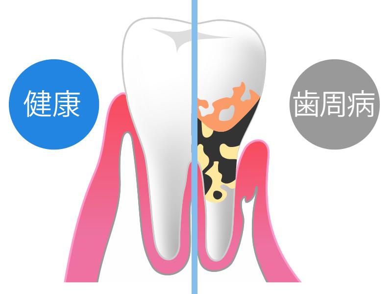 歯周病とは(体に及ぼす影響など)